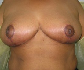 Manhattan Breast Reduction After